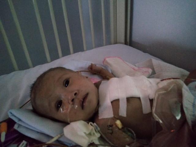 Sự sống mong manh của bé trai 4 tháng tuổi gồng mình chống chọi đủ thứ bệnh - Ảnh 2.