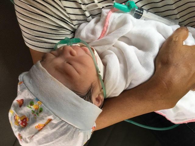 Yên Bái: Gia đình choáng váng khi bé sơ sinh vừa chào đời đã bị gẫy xương đòn - Ảnh 1.