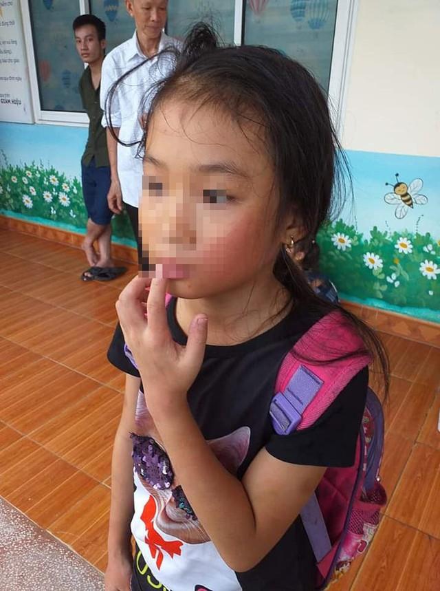Đi học thêm, bé gái bị cô giáo bạo hành tại lớp - Ảnh 3.
