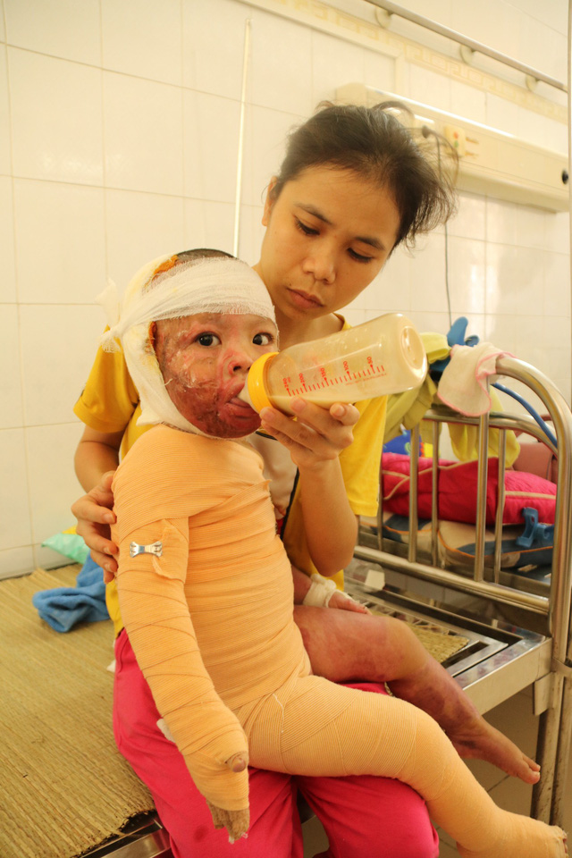 Hai chị em bị bỏng nặng đã có những tiến triển tốt - Ảnh 2.