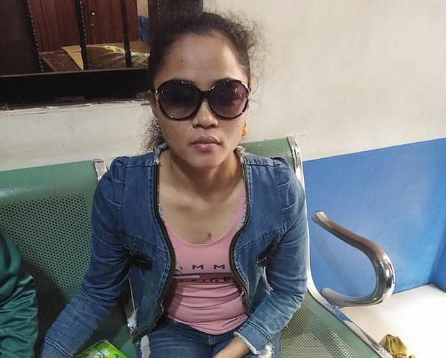 Cô gái mù hai mắt vì bị người tình đồng tính của bạn trai tạt axit - Ảnh 1.