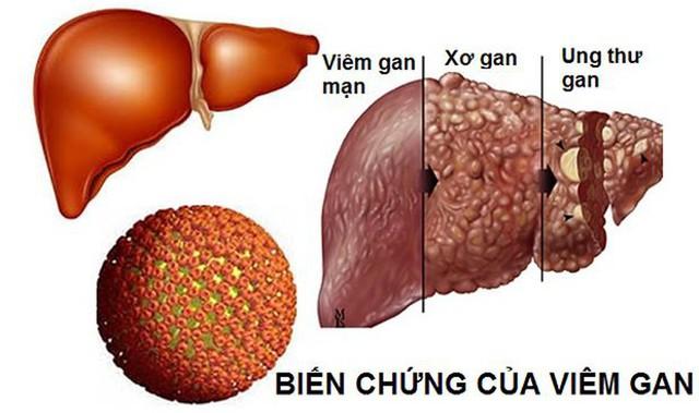 25.000 người chết vì ung thư gan mỗi năm, cách nào phát hiện sớm? - Ảnh 1.