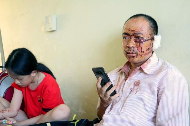Nạn nhân xe Phương Trang: Người văng khắp nơi, la hét thất thanh - Ảnh 1.