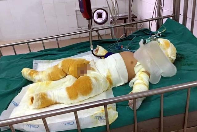 Thương tâm bé trai  7 tháng tuổi cùng cha mẹ bị bỏng nặng do hở gas lúc đun nấu - Ảnh 1.