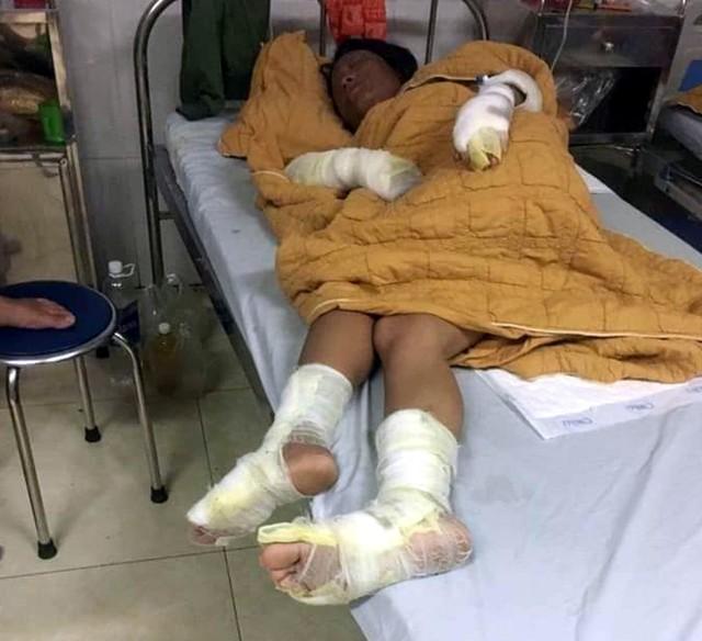 Thương tâm bé trai  7 tháng tuổi cùng cha mẹ bị bỏng nặng do hở gas lúc đun nấu - Ảnh 3.