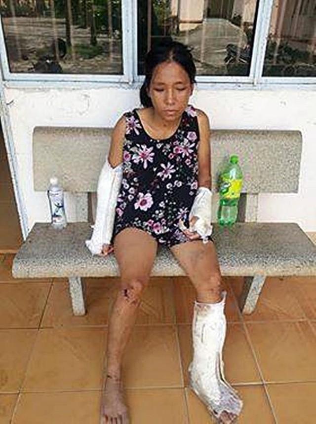 Sức khỏe thai phụ bị chồng đánh gãy tay chân bây giờ ra sao? - Ảnh 1.