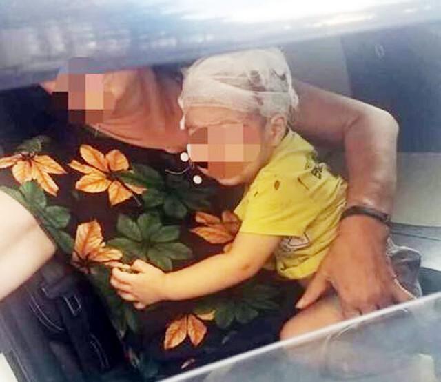 Hà Nội: Chổi lau nhà rơi từ tầng 17 chung cư xuống đất khiến 1 bé trai vỡ đầu nhập viện - Ảnh 1.