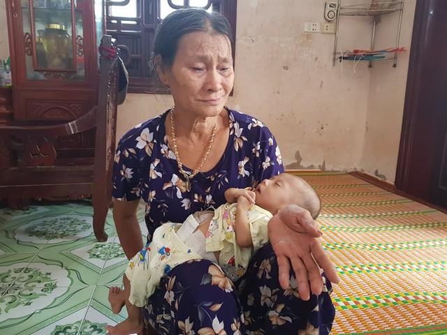 Món quà đặc biệt đến với bé trai 4 tháng tuổi mang đủ thứ bệnh - Ảnh 2.