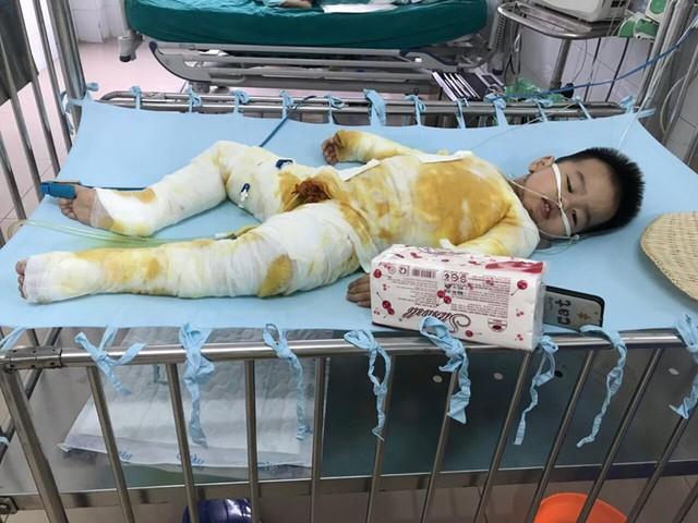 Xót xa bé trai 2 tuổi bị bỏng toàn thân do ngã vào nồi nước nóng - Ảnh 1.