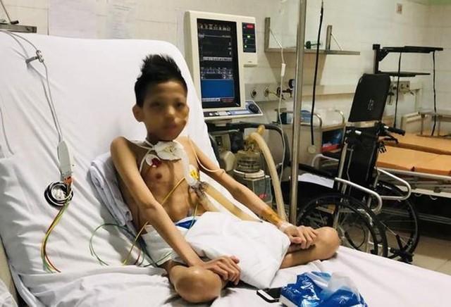 Thiếu niên 17 tuổi nặng 30 kg được ghép phổi với chi phí 5 tỷ đồng - Ảnh 3.