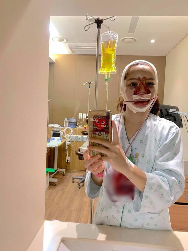 Lưu Đê Ly khoe trải qua 6 ca phẫu thuật ở Hàn để đập mặt làm lại, đẹp hay không chưa bàn chỉ biết là quá dũng cảm rồi! - Ảnh 3.