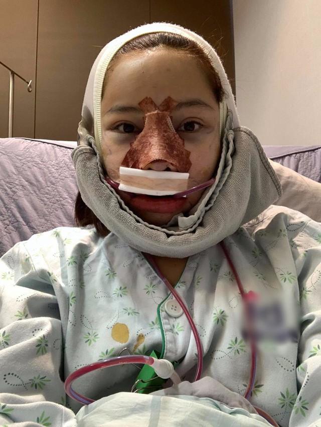 Lưu Đê Ly khoe trải qua 6 ca phẫu thuật ở Hàn để đập mặt làm lại, đẹp hay không chưa bàn chỉ biết là quá dũng cảm rồi! - Ảnh 4.
