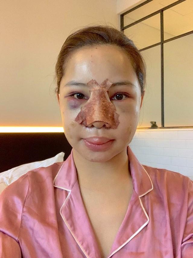 Lưu Đê Ly khoe trải qua 6 ca phẫu thuật ở Hàn để đập mặt làm lại, đẹp hay không chưa bàn chỉ biết là quá dũng cảm rồi! - Ảnh 5.