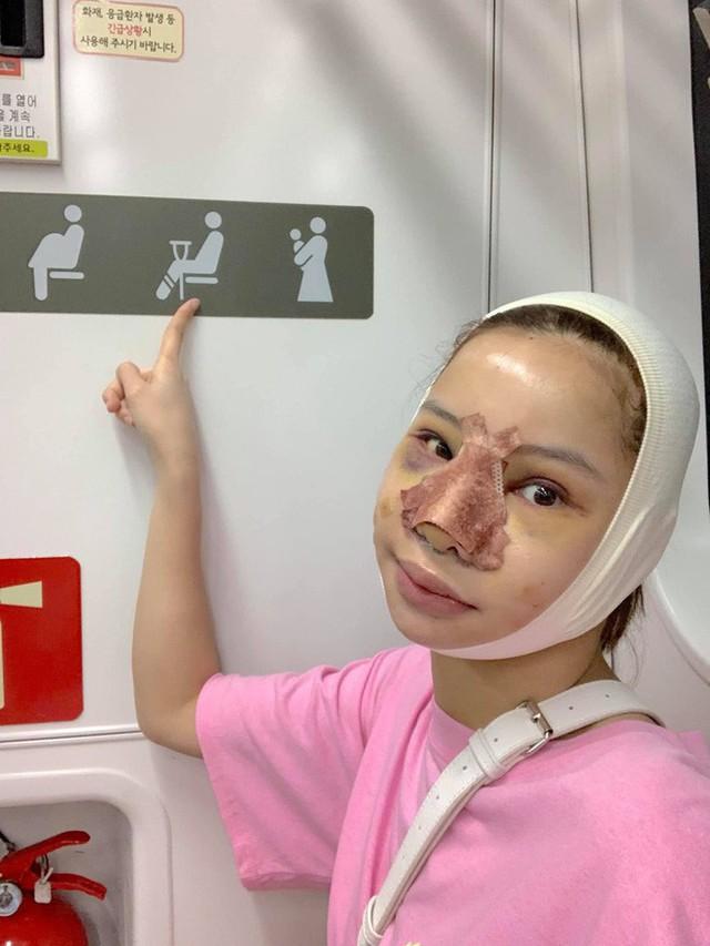 Lưu Đê Ly khoe trải qua 6 ca phẫu thuật ở Hàn để đập mặt làm lại, đẹp hay không chưa bàn chỉ biết là quá dũng cảm rồi! - Ảnh 6.