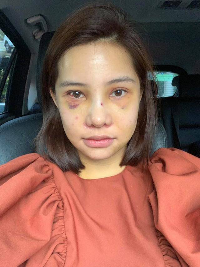 Lưu Đê Ly khoe trải qua 6 ca phẫu thuật ở Hàn để đập mặt làm lại, đẹp hay không chưa bàn chỉ biết là quá dũng cảm rồi! - Ảnh 7.