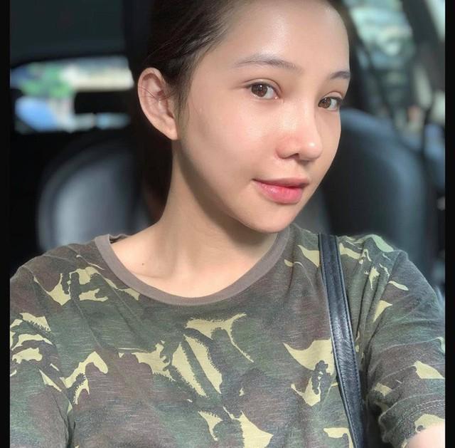Lưu Đê Ly khoe trải qua 6 ca phẫu thuật ở Hàn để đập mặt làm lại, đẹp hay không chưa bàn chỉ biết là quá dũng cảm rồi! - Ảnh 10.