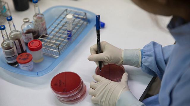 Cách phát hiện bệnh whitmore: Căn bệnh vẫn chưa có vacxin phòng chống - Ảnh 1.