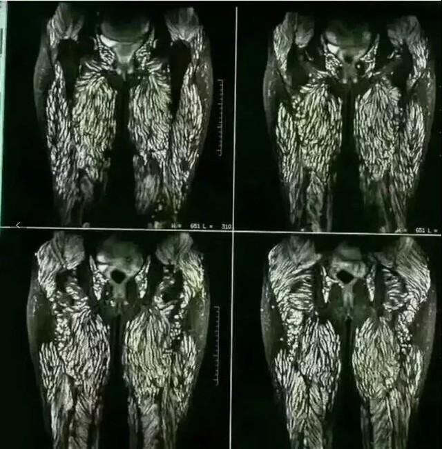Người phụ nữ bị sán làm tổ kín cả hai chân và phần nhạy cảm chỉ vì thích ăn gỏi  - Ảnh 1.