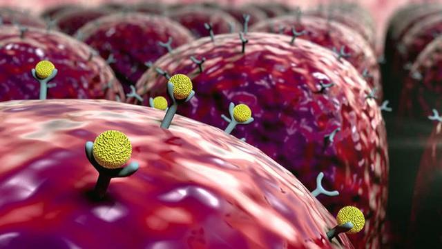 Nam giới sau tuổi 45 phải đặc biệt cảnh giác với 3 căn bệnh nguy hiểm: Biết muộn khó chữa - Ảnh 3.