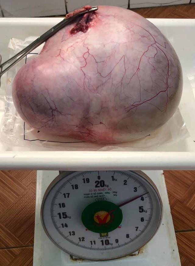 Từ việc các cụ bà có những khối u khủng ngót 4 kg - bác sĩ hướng dẫn cách phòng và phát hiện sớm khối u ở phụ nữ - Ảnh 1.