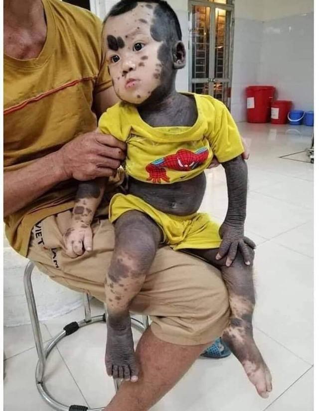 Nhói lòng hình ảnh bé trai 20 tháng tuổi với làn da chó, mồ côi mẹ, không tiền chữa trị - Ảnh 1.