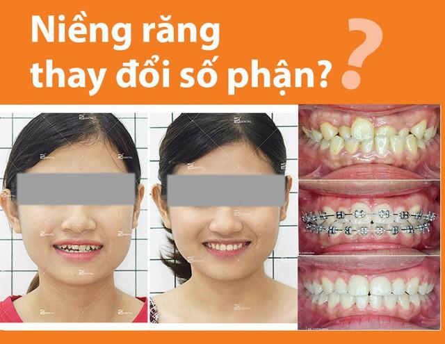 Kinh nghiệm niềng răng thay đổi số phận dành cho chị em - Ảnh 1.