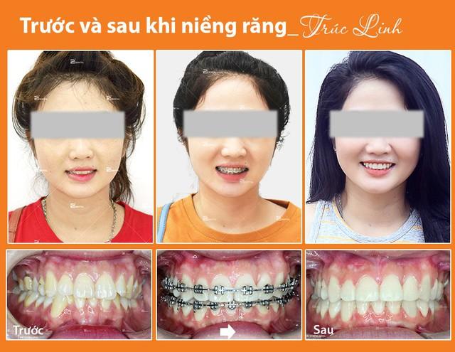 Kinh nghiệm niềng răng thay đổi số phận dành cho chị em - Ảnh 2.