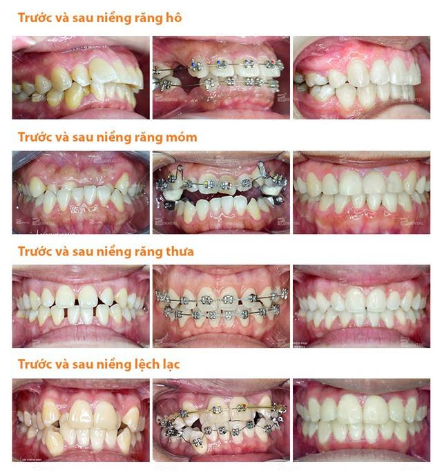 Kinh nghiệm niềng răng thay đổi số phận dành cho chị em - Ảnh 3.