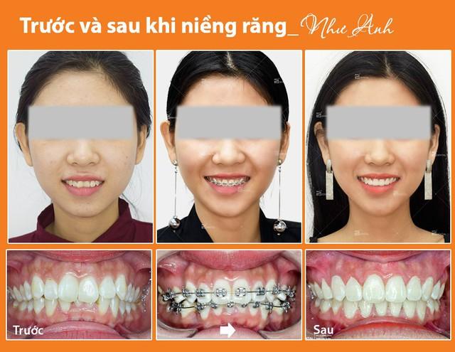 Kinh nghiệm niềng răng thay đổi số phận dành cho chị em - Ảnh 4.