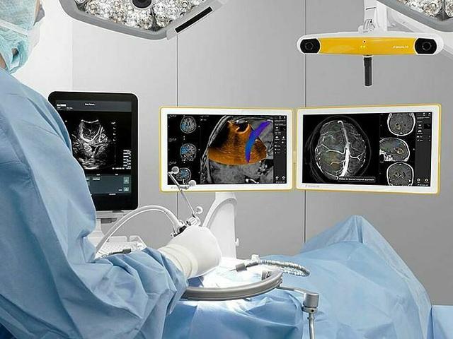 Siêu âm định vị khối u não để phẫu thuật  - Ảnh 1.