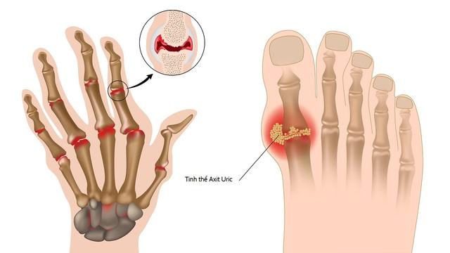 Sử dụng nước điện giải ion kiềm giúp cải thiện bệnh gout theo lời khuyên bác sĩ - Ảnh 2.