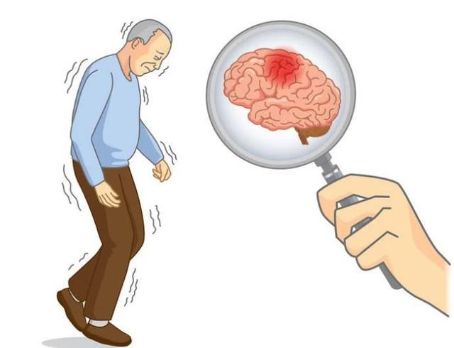 3 đặc điểm xuất hiện khi thức dậy vào buổi sáng cảnh báo bệnh nhồi máu não - Ảnh 1.