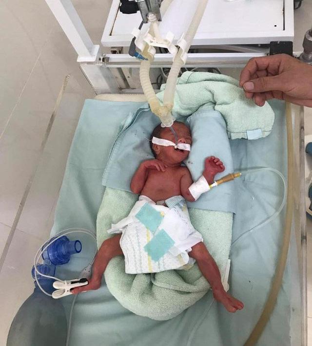 Bác sĩ xúc động kể lại hành trình vượt gần 600 km giành sự sống cho bé sinh non  - Ảnh 3.