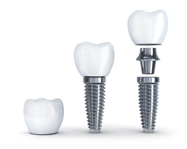 Nha khoa My Auris – Địa chỉ trồng răng Implant uy tín và an toàn - Ảnh 2.