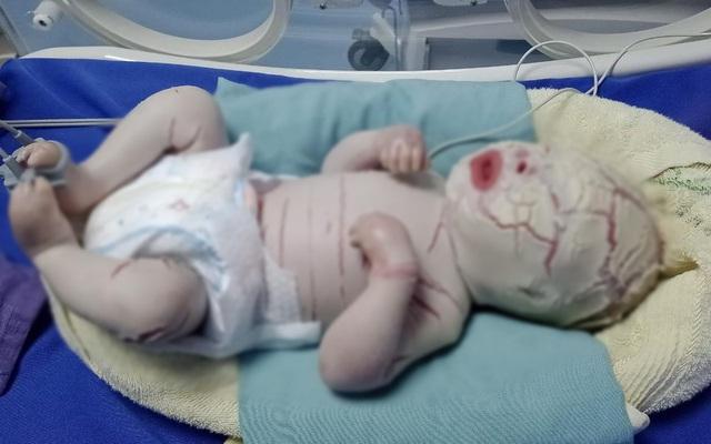 Từ trường hợp bé sơ sinh da khô cứng nứt nẻ, thai phụ cần đặc biệt lưu ý khi mang thai - Ảnh 2.