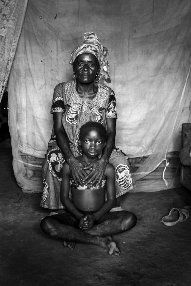 Lo sợ tội phạm tình dục, các bà mẹ Cameroon ủi phẳng ngực con gái - Ảnh 2.