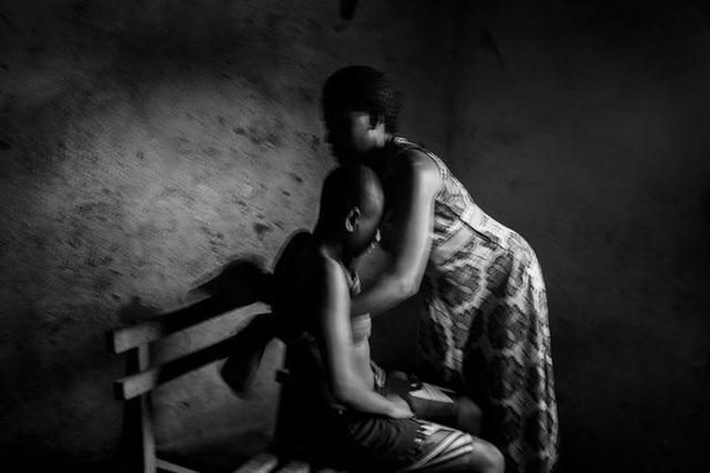 Lo sợ tội phạm tình dục, các bà mẹ Cameroon ủi phẳng ngực con gái - Ảnh 3.