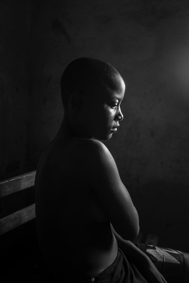 Lo sợ tội phạm tình dục, các bà mẹ Cameroon ủi phẳng ngực con gái - Ảnh 6.