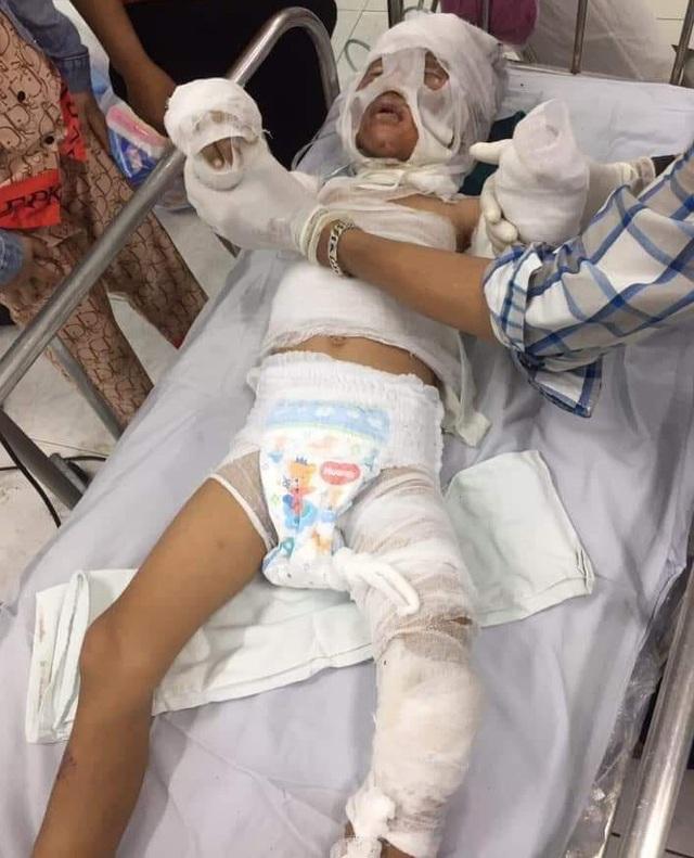 Bố bé 6 tuổi bị dì ruột tẩm xăng đốt: Cháu rất quý dì Phượng, suốt ngày mẹ Phượng, mẹ Phượng - Ảnh 2.