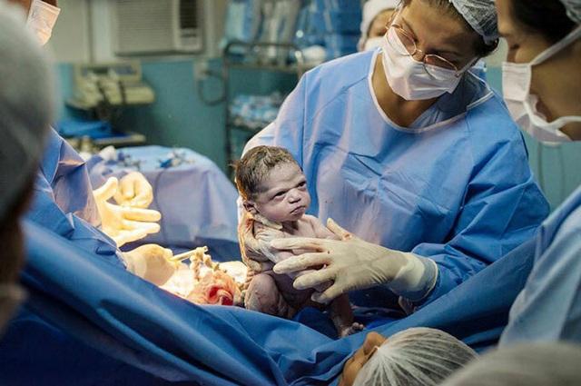 Hài hước khoảnh khắc em bé lườm bác sĩ khi chào đời - Ảnh 1.