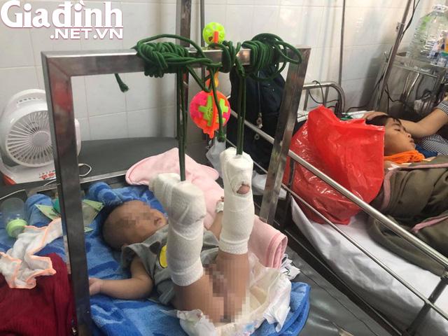 Xót xa bé 4 tháng tuổi bị bố đánh gãy chân, xuất huyết não: Bố gì mà ác thế! - Ảnh 1.
