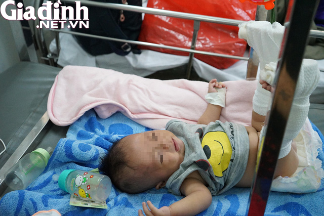 Xót xa bé 4 tháng tuổi bị bố đánh gãy chân, xuất huyết não: Bố gì mà ác thế! - Ảnh 4.