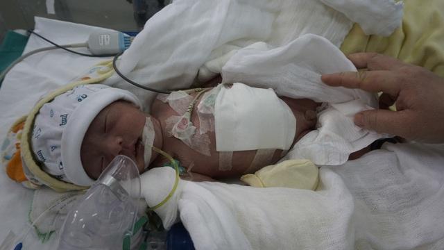 Bé trai 7 ngày tuổi bị thoát vị thành bụng cần gấp tiền điều trị - Ảnh 2.