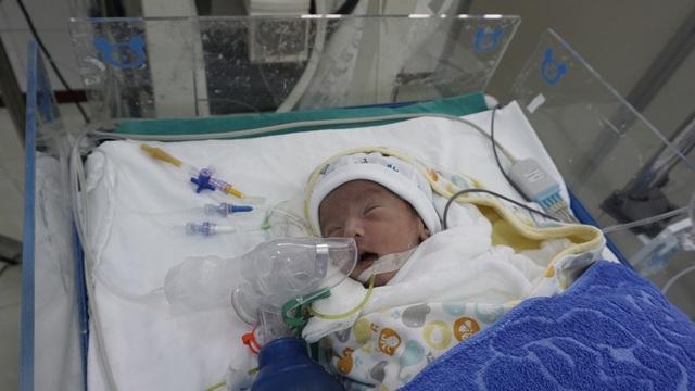 Bé trai 7 ngày tuổi bị thoát vị thành bụng cần gấp tiền điều trị - Ảnh 3.