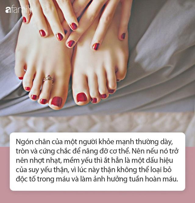 Người thận yếu thường xuất hiện 4 dấu hiệu rõ mồn một này trên bàn chân, ai cũng cần biết để phòng bệnh - Ảnh 3.