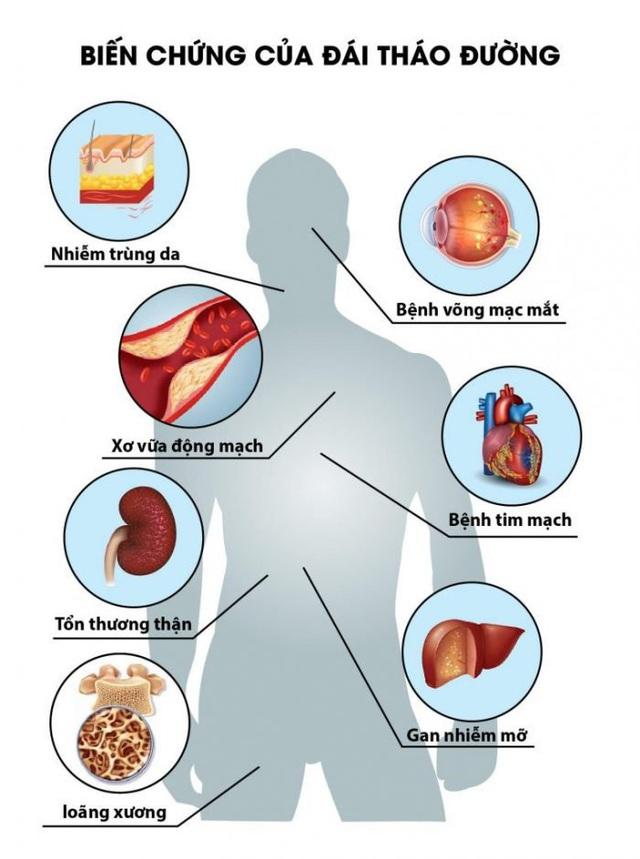 Đi tiểu nhiều hơn 4 đến 6 lần một ngày, bạn có thể mắc 3 căn bệnh sau đây - Ảnh 5.