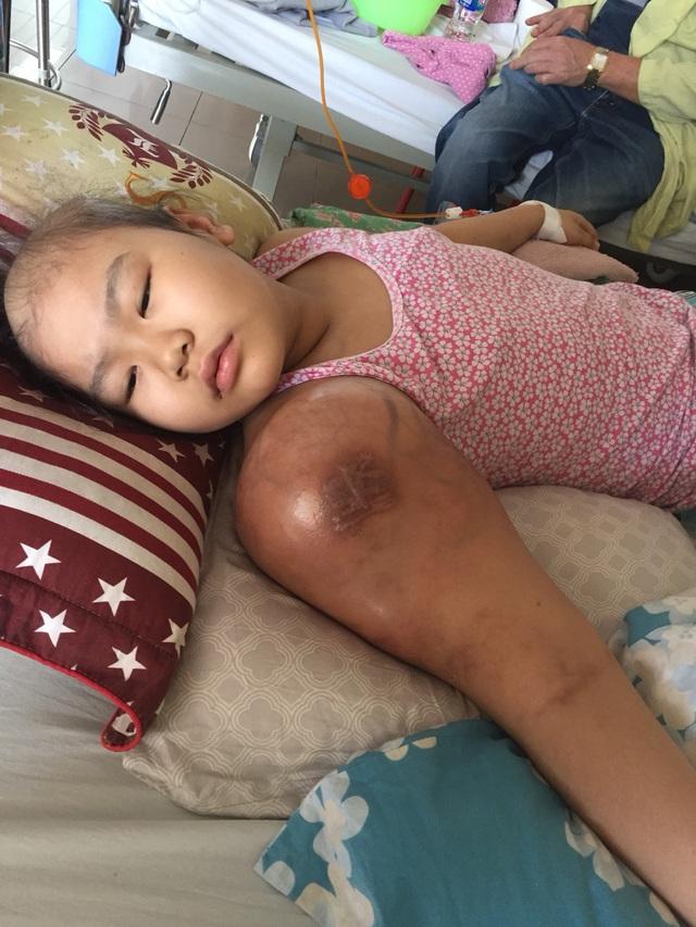 Nhói lòng trước cảnh bé gái dân tộc Tày xinh xắn mắc ung thư xương, khối u ở tay ngày một lớn - Ảnh 2.