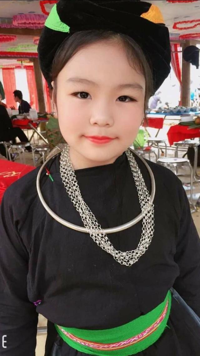 Nhói lòng trước cảnh bé gái dân tộc Tày xinh xắn mắc ung thư xương, khối u ở tay ngày một lớn - Ảnh 4.