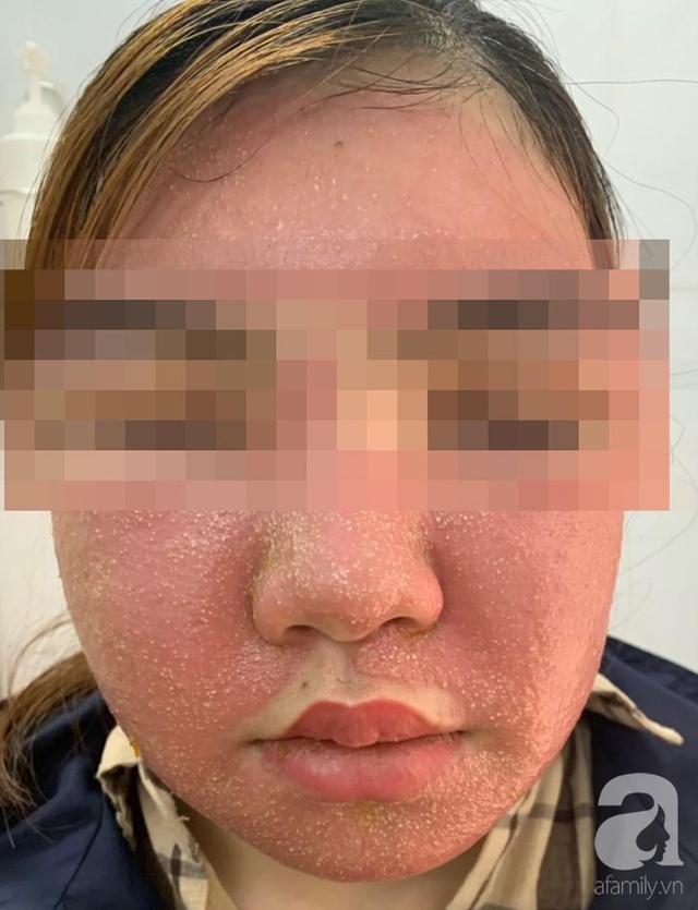 Đắp mặt nạ làm trắng da giá 600.000 đồng, mặt người phụ nữ sưng phù, mụn mủ nhiều kinh khủng - Ảnh 1.