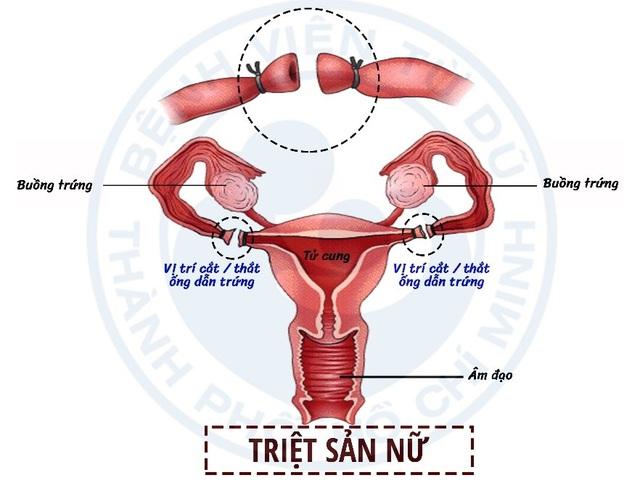 Các biện pháp tránh thai ưu việt hiện nay - Ảnh 4.